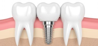 Which One Is Better? Dental Implants Or Artificial Teeth