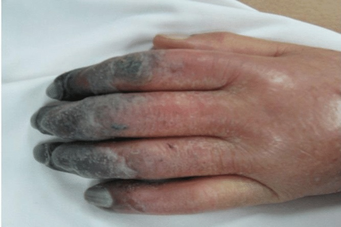 Cyanosis: What are the Treatment Options?